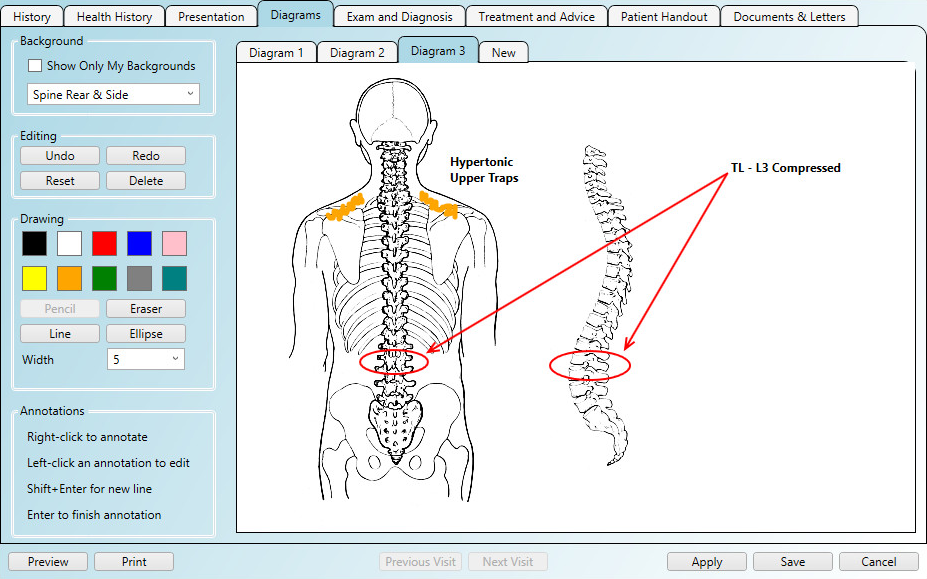 Using chiropractic diagrams in the patient notes area of the software